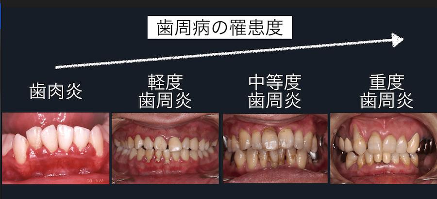病 方 治し 周 歯